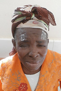 Patient with trichiasis on both eyes before surgery Credit RTI International